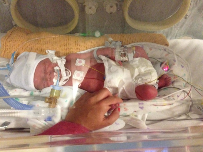 Newborn Toby premature